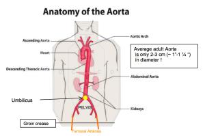 aorta overlay